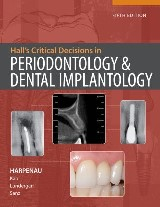 Hall's Critical Decision Making in Periodontology, 5e